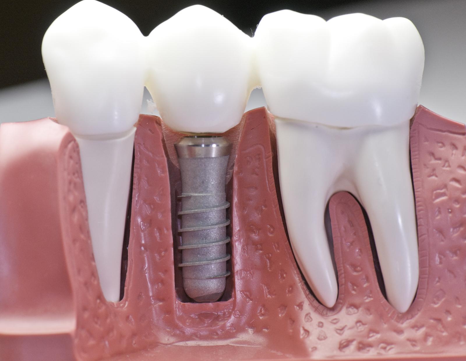 preço de um implante dentário em idosos