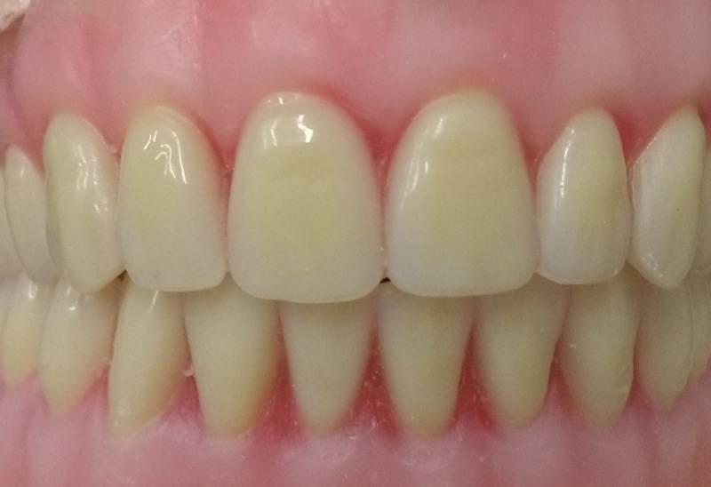 preço do implante dentário em idosos