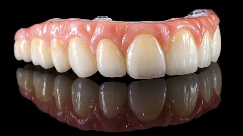 preço implante dentário em idosos completo