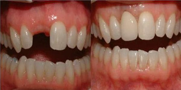 preço médio de um implante dentário em idosos
