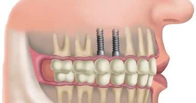 qual o preço médio de um implante dentário