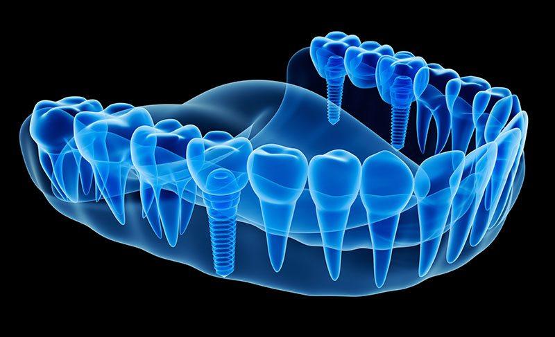 valor do implante dentário para idosos