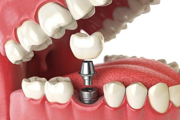 valor médio de um implante dentário para idosos